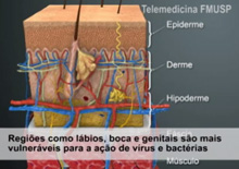 Gonorréia e Herpes Genital
